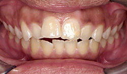 Orthodontic Problems - Open Bite