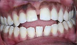 Orthodontic Problems - Open Bite