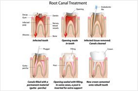 Root Canal Treatment Houston