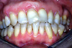 Orthodontic Problems - Improper Angulation of Teeth