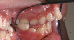 Orthodontic Problems - Protruding Upper Teeth