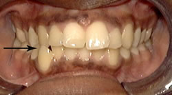 Orthodontic Problems - Crossbite