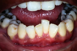 Orthodontic Problems - Crowding