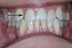 Orthodontic Problems - Missing Tooth
