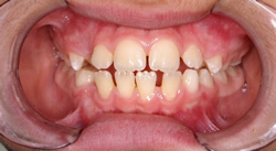 Orthodontic Problems - Spaces