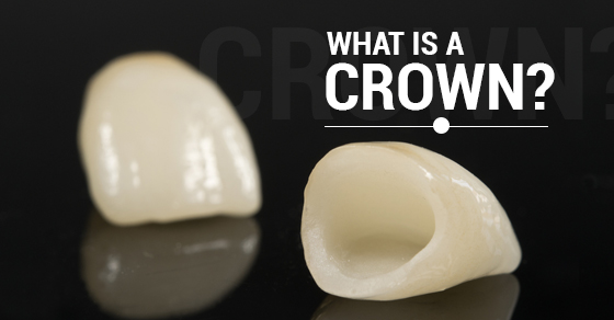 What Is A Crown
