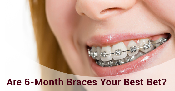 Are 6-Month Braces Your Best Bet?