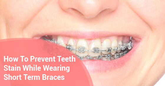How To Prevent Teeth Stain While Wearing Short Term Braces