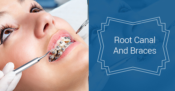 Root Canal And Braces