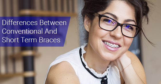Differences Between Conventional And Short Term Braces