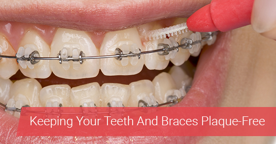 Keeping Your Teeth And Braces Plaque-Free