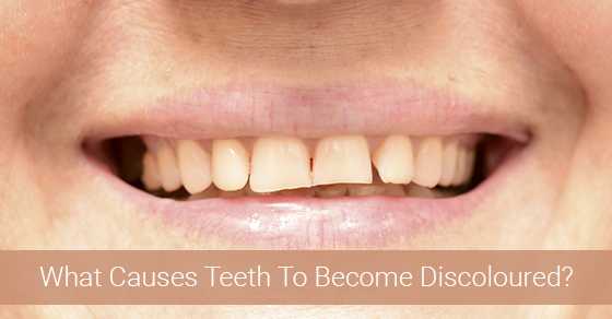 What Causes Teeth To Become Discoloured?