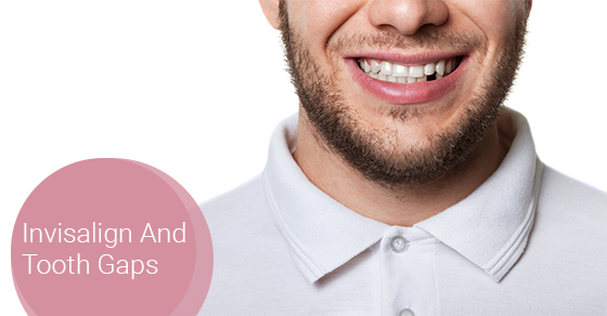 Invisalign And Tooth Gaps