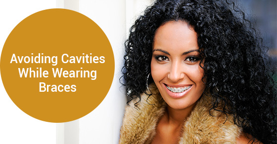 Avoiding Cavities While Wearing Braces
