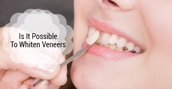 Is It Possible To Whiten Veneers