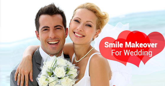 Smile Makeover For Wedding