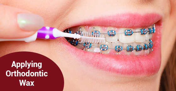Applying Orthodontic Wax