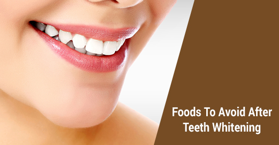 5 Foods To Avoid After A Teeth Whitening David Silberman Dds