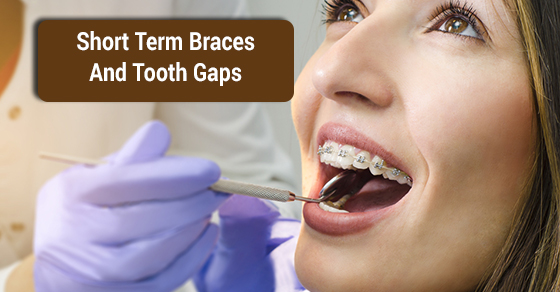 Short Term Braces And Tooth Gaps